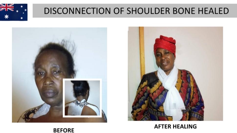 Left Shoulder Healed