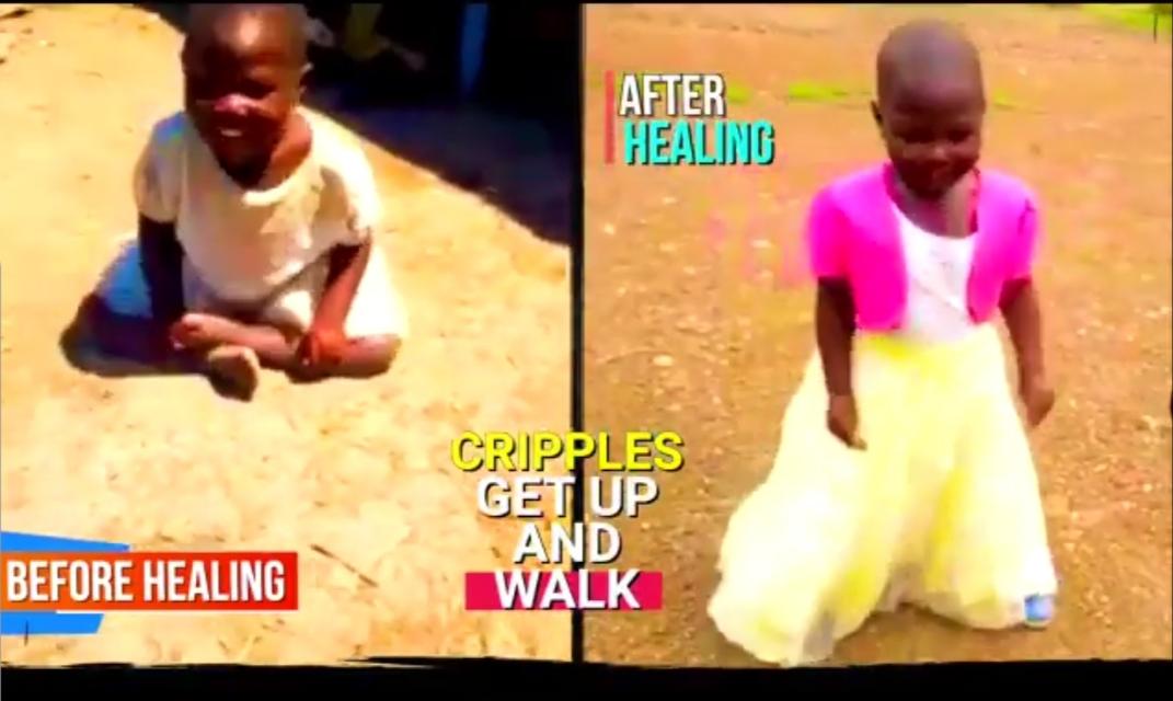Totally Crippled Girl Walks