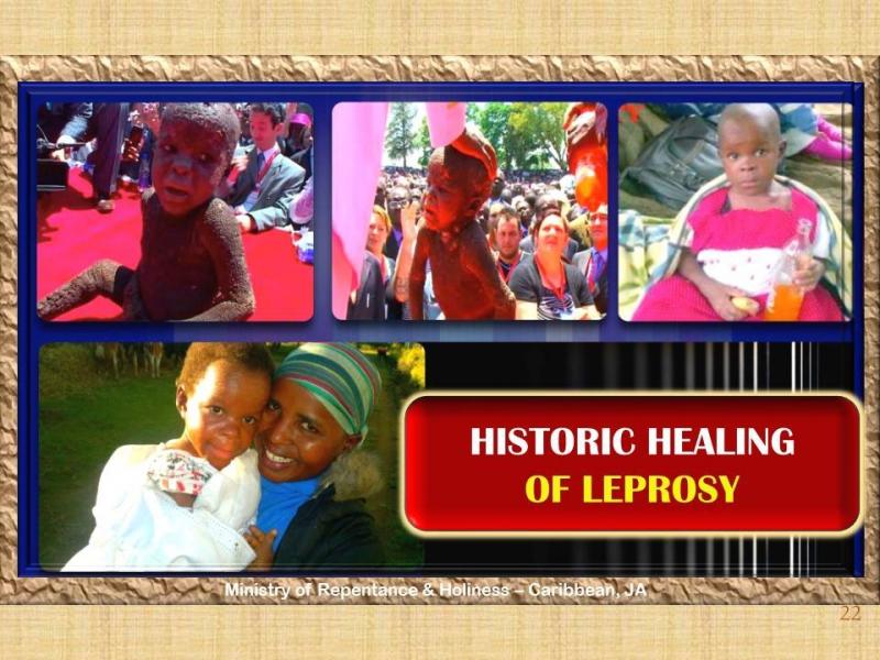 Leprosy Healed
