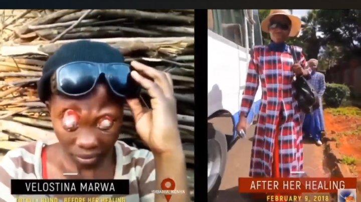 Totally Naked Blind Eyes Healed